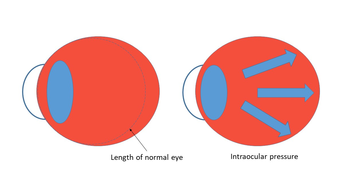 hight resolution of we know that increased levels of myopia are associated with increased risk of myopic pathologies like retinal detachment and myopic maculopathy 1 we also