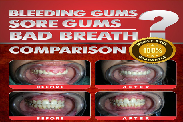 gingivitis treatment in uk