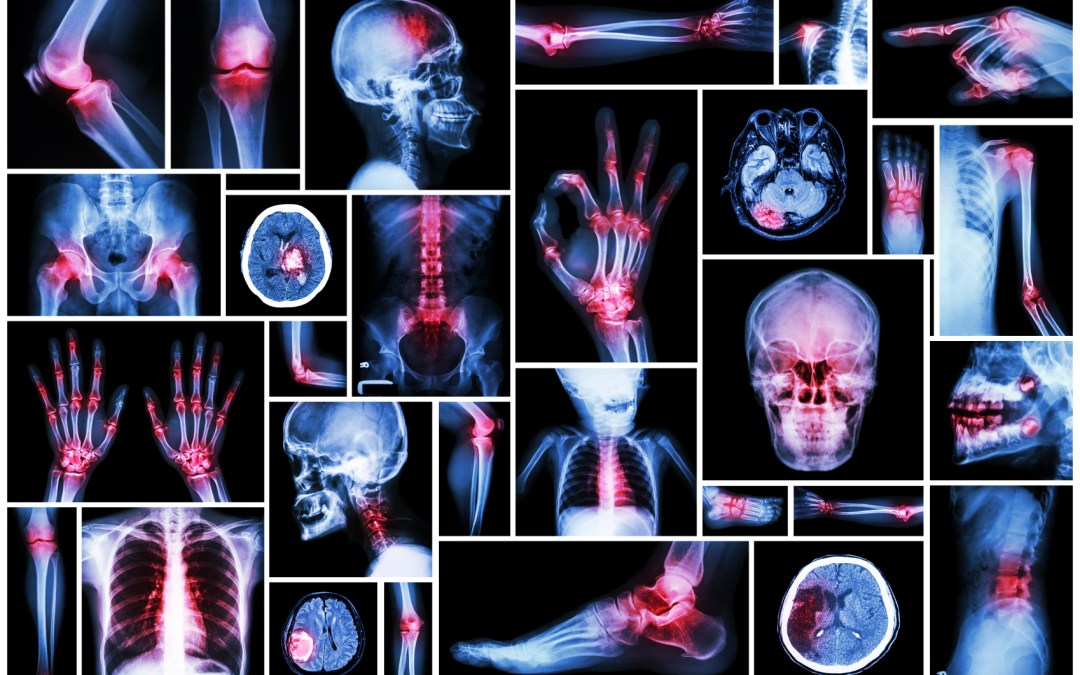 Reduce your arthritis pain naturally!