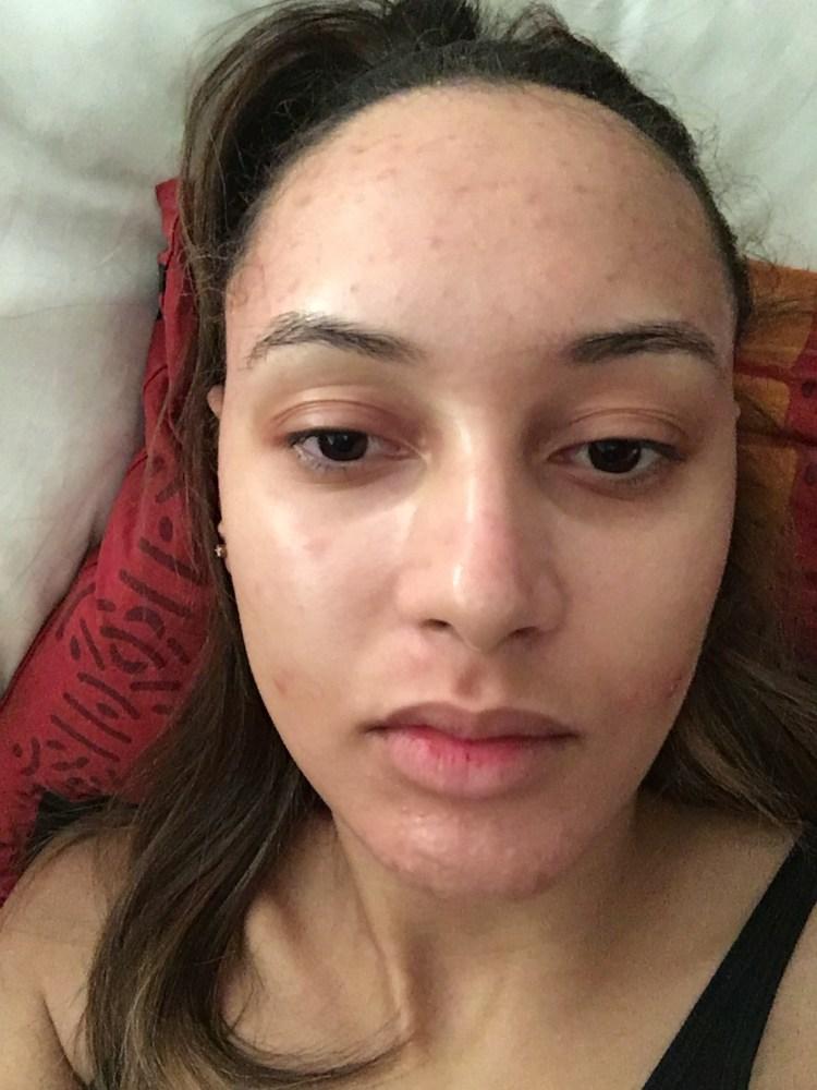 acne-roaccutane-traitementSeptembre 2016