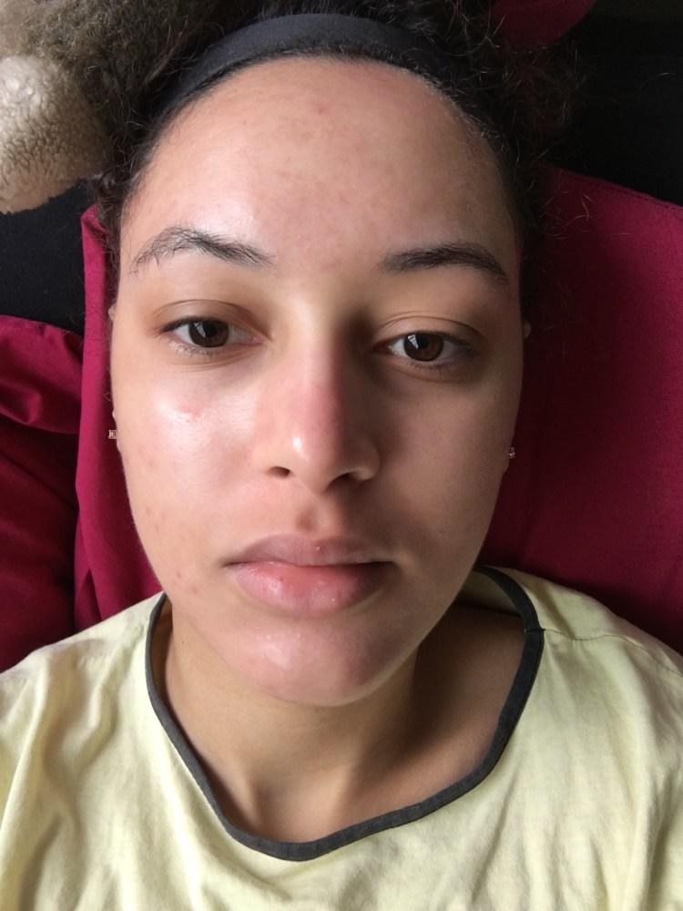 acne-roaccutane-traitement