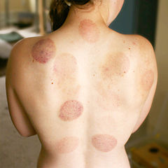 Cupping Therapy Bruises