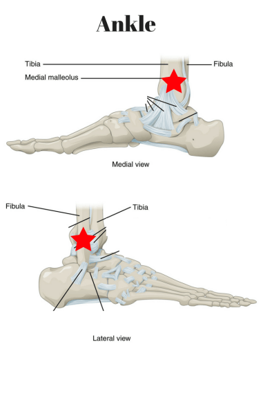 How do I know if I need an ankle x-ray?