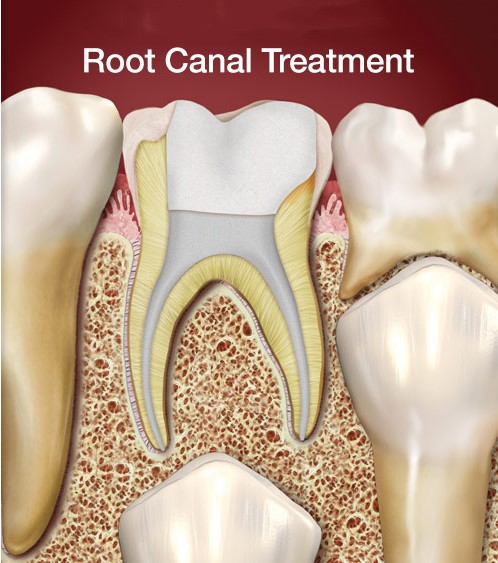 Root Canal Therapy - My Plantation Dentist - Heidi ...