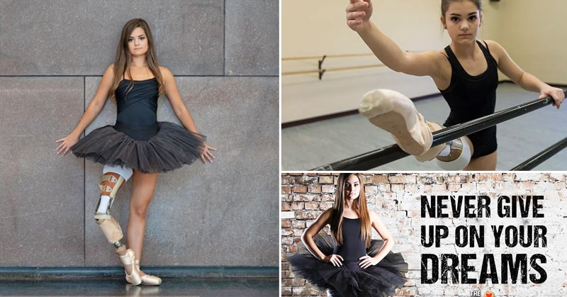 Inspiring Teen Who Lost Her Leg Due To Cancer Makes An Incredible Recovery
