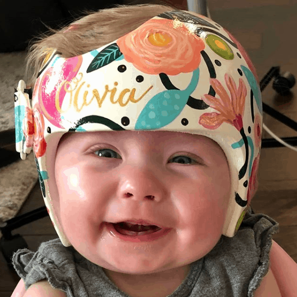 baby wearing a corrective helment