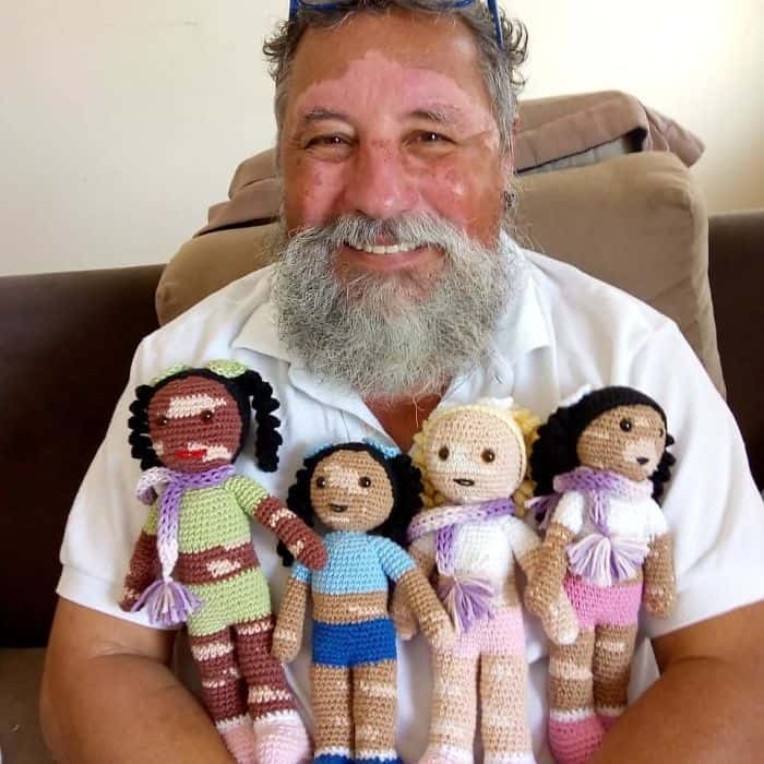 Grandpa with vitiligo and his dolls