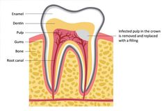 Photo of Dental Root Canal Treatment Houston