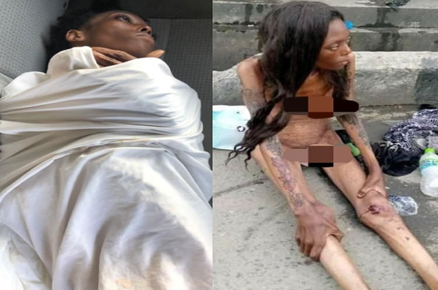 Malnourished Naked HIV Woman Dropped