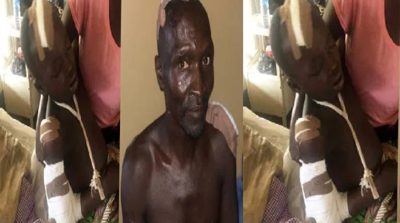 Following the Fulani herdsmen attacks in Southern Kaduna, some of the victims are being hospitalized as they narrate their ordeal.