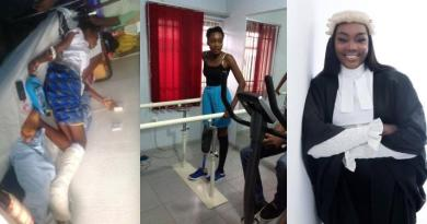 Lady lists all she achieved 5 years after losing her leg to an accident (Photos)