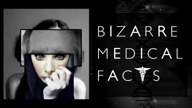 50 πιο ενδιαφέροντα και περίεργα ιατρικά γεγονότα που δεν θα πιστεύετε ότι είναι αλήθεια 6