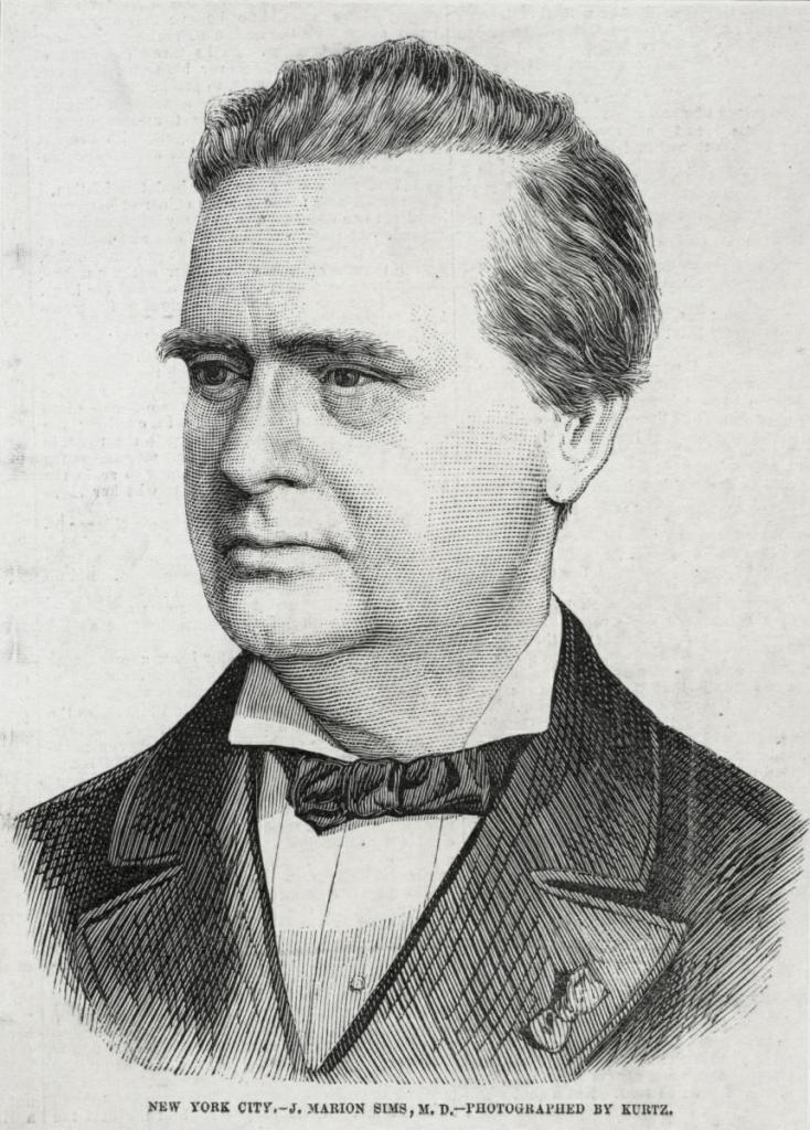 J. Marion Sims: le «père de la gynécologie moderne»