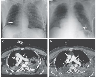 CT Scans show that the heart roated 90 degrees to the right side of the chest