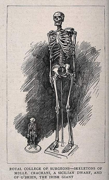 Dibujo sobre esqueletos de un hombre gigante y una mujer enana expuestos en el Royal College of Surgeons.