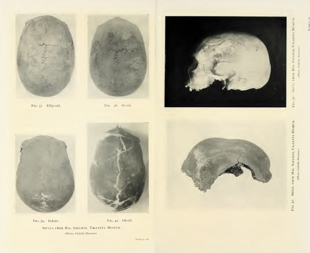 Some of the skulls with anomalies found in the prehistoric Hypogean temple of Hal Saflieni, Malta. aliens in Malta
