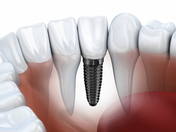Benefits of Dental Implant Dentistry