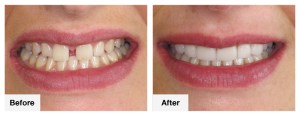 Staying Healthy in Life by Choosing the Best Dental Care Services