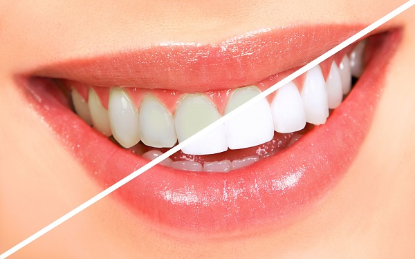 how-to-whiten-your-teeth (1)
