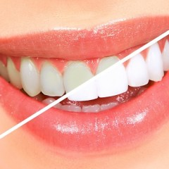 Are your pearly whites staining and losing their luster?