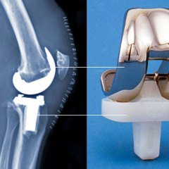 Best and Inexpensive Knee Replacement Surgery in Indian Hospitals