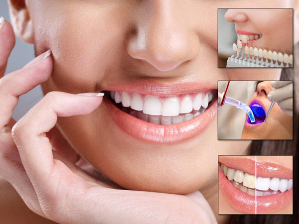 Taking Care of Oral Health with Dental Services to Live a Healthy Life