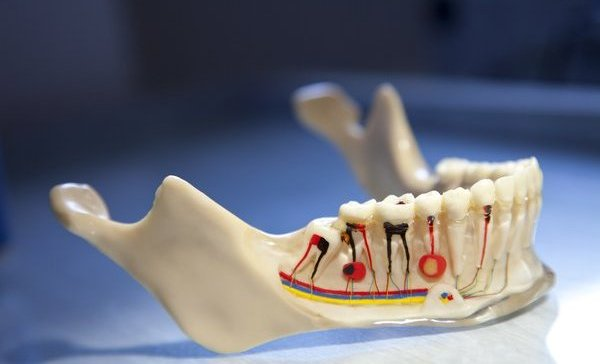 Root Canal Treatment A Better Way To Protect Your Decayed Tooth
