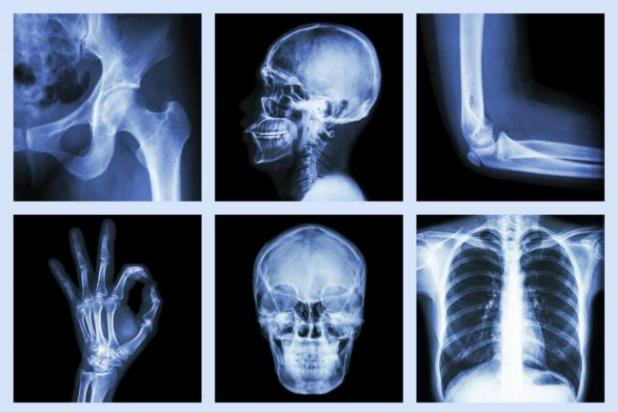 4-dietas-que-pueden-causarte-descalcificacion-en-los-huesos-1