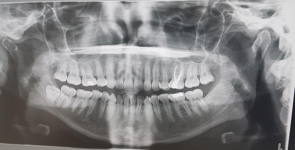 röntgen gebit