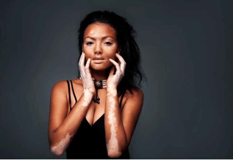 Hyperpigmentation, Melasma and Vitiligo: What They Are and How You Can Naturally Cure Them?
