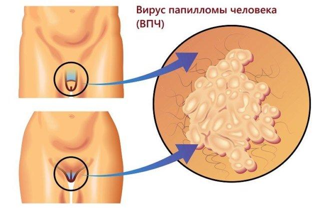 Как удалить генитальные папилломы. Причины появления папиллом. Препараты для лечения папилломы