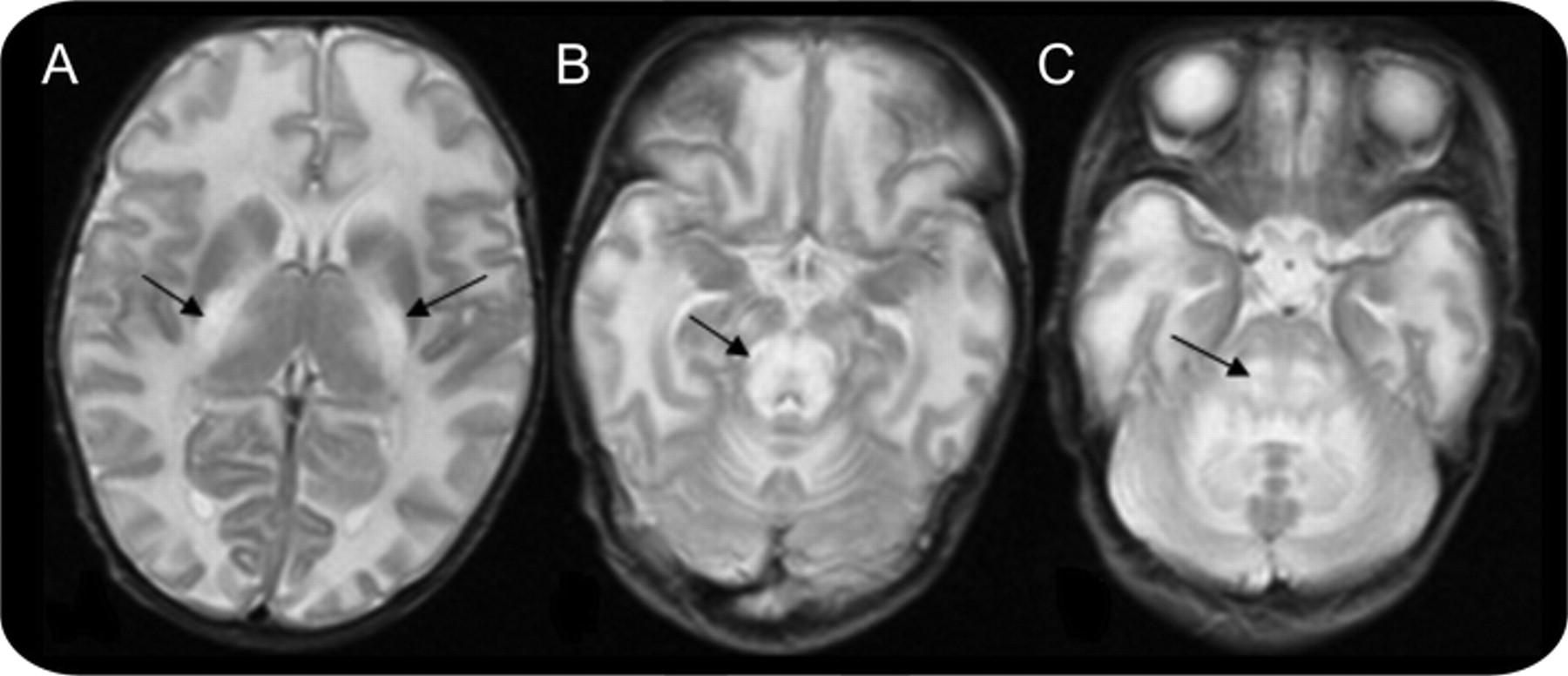 Teaching Neuroimages Mri In Maple Syrup Urine Disease