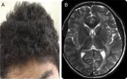 giant axonal neuropathy neurology