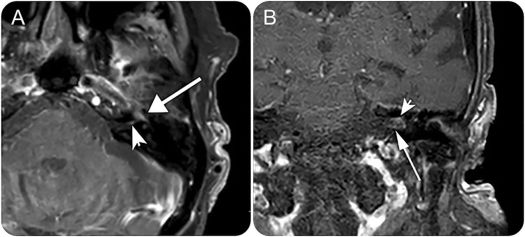 Teaching NeuroImages: Classic Ramsay Hunt syndrome and ...