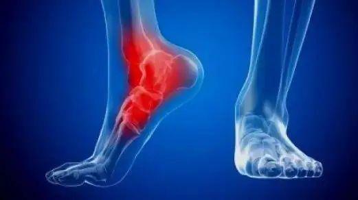 六大常見跑步損傷 成因及處理預防方法_跑步頻道_新浪競技風暴_新浪網