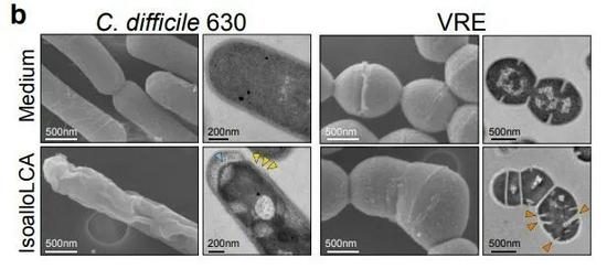 電子顯微鏡下可以看到,isoalloLCA引起了艱難梭菌和糞腸球菌(VRE)變形,最終殺死了這些病原體