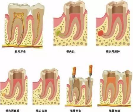 牙齒做完根管治療后可以立刻做牙套么?-