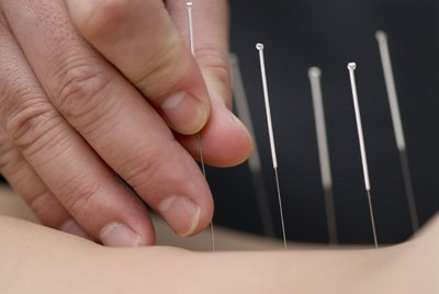 acupuncture infertility and horrible