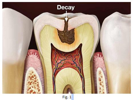 Tooth Decay Causes