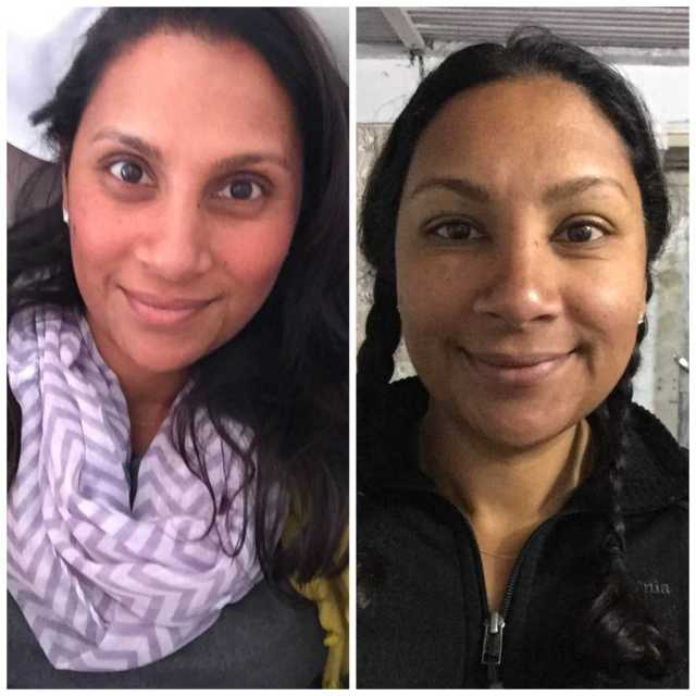peripheral_edema_of_a_womans_face_before_and_after_annapurna_base_camp_2015