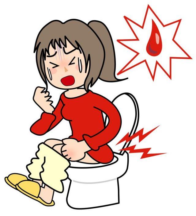 직장출혈 치질
