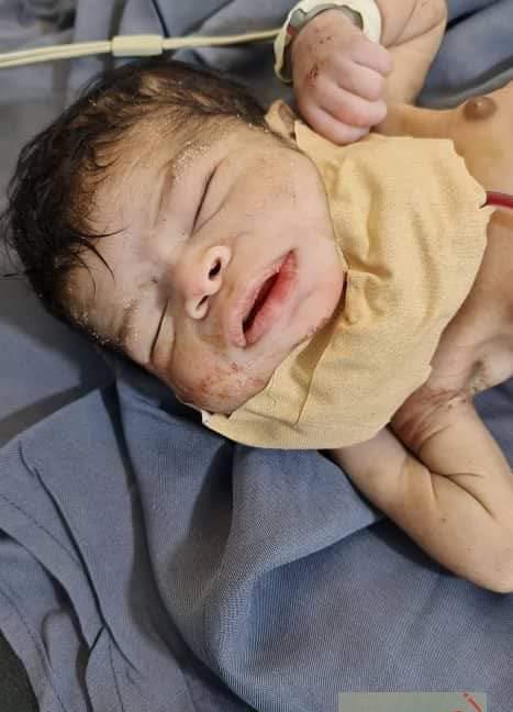 فريق طبي سوداني ينجح في إجراء عملية معقدة وخطيرة لطفل حديث الولادة