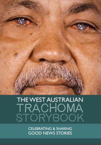 close up photo of Aboriginal man's mouth, nose & bloodshot eyes - text 'The WA Trachoma Storybook - Celebrating & Sharing Good News Stories'