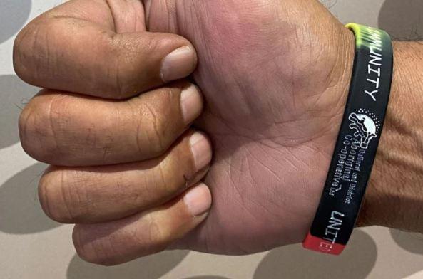 Aboriginal person's wrist with BDAC COVID-19 wristband