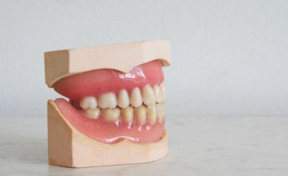 dentist's model of teeth in gums, jaw