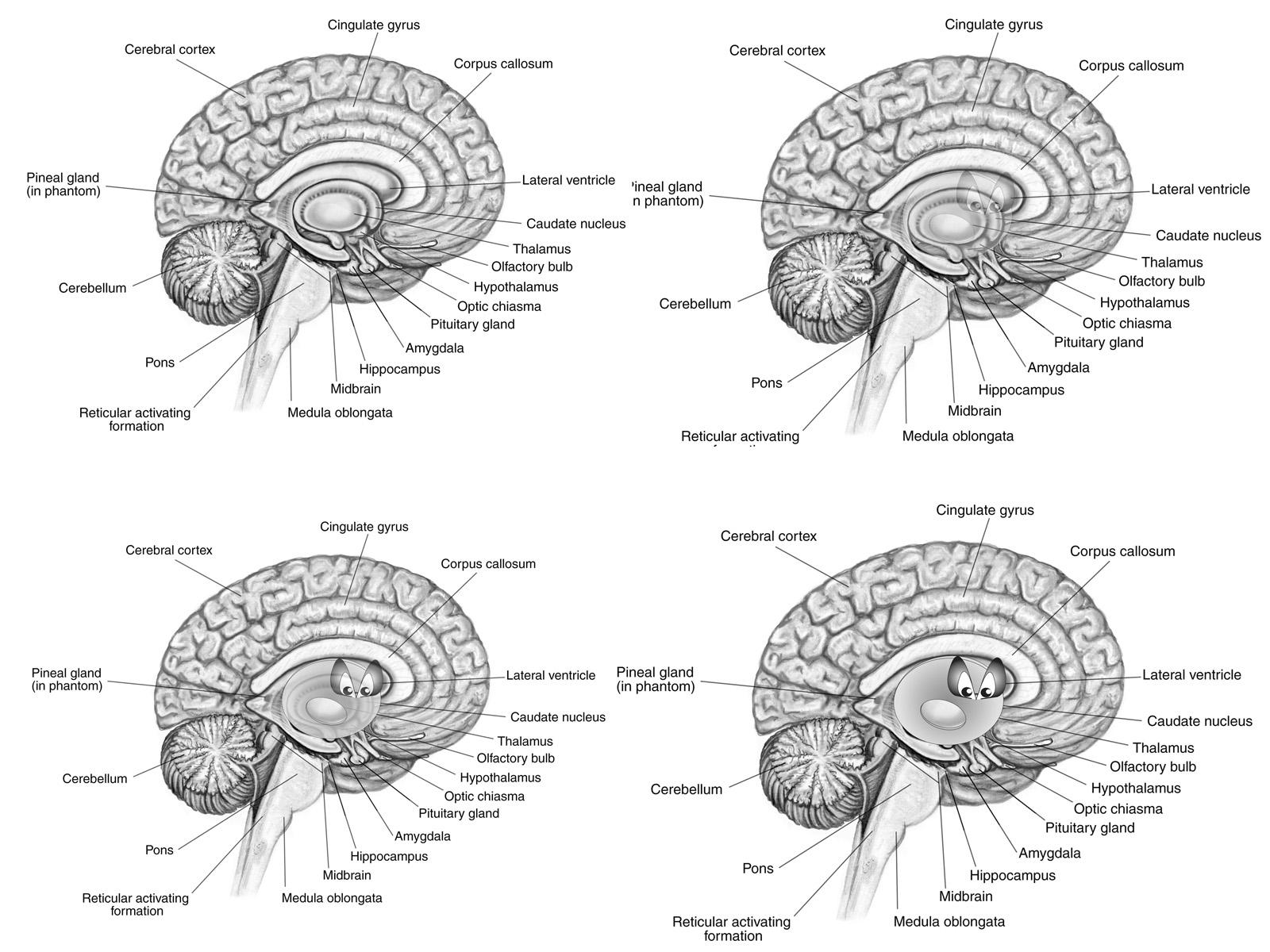 brain diagram inside 2003 gmc yukon denali stereo wiring nacho donut