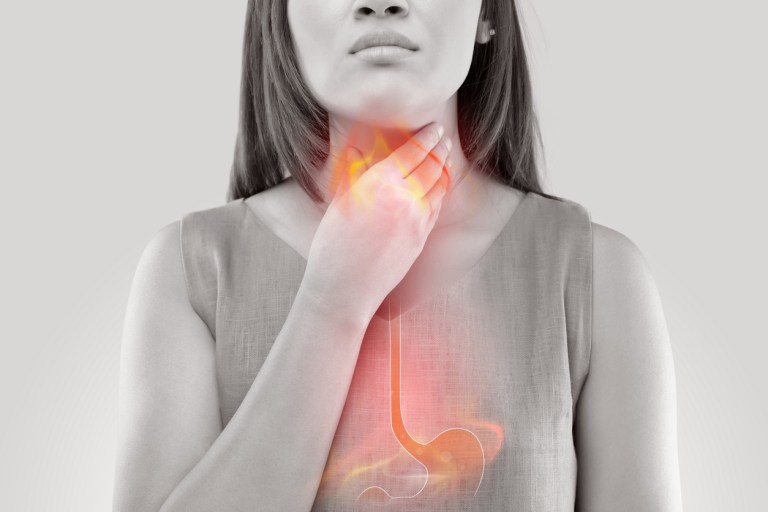 Acid Reflux and Your Voice: Help for a Common Singing Problem*