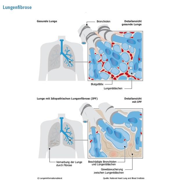 Lungeninfodienst Lungenfibrose