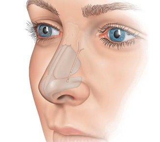 north-atlanta-ear-nose-throat-doctors-cumming-spirox-latera