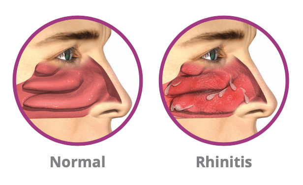 Chronic Rhinitis vs Normal Nose